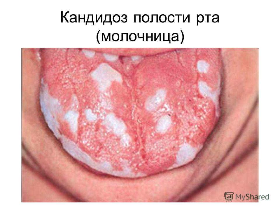 Кандидоз полости рта (молочница)
