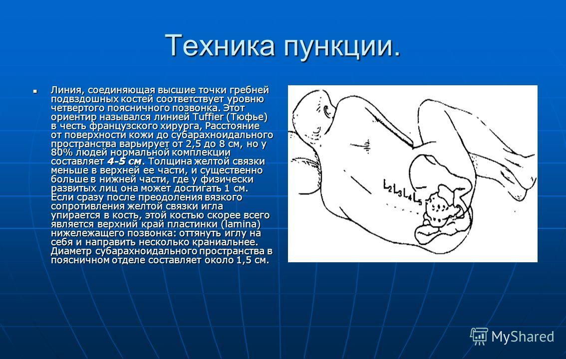 Техника пункции. Линия, соединяющая высшие точки гребней подвздошных костей соответствует уровню четвертого поясничного позвонка. Этот ориентир назывался линией Tuffier (Тюфье) в честь французского хирурга, Расстояние от поверхности кожи до субарахно
