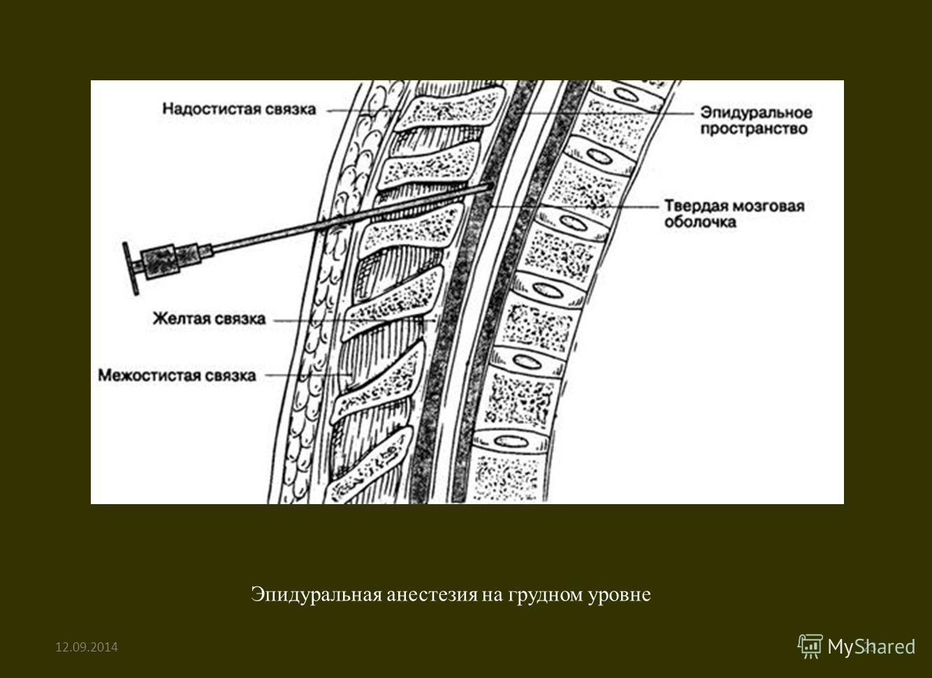 Эпидуральная анестезия на грудном уровне 12.09.201423