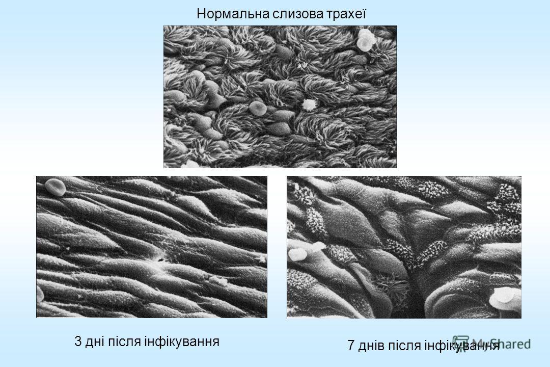Нормальна слизова трахеї 3 дні після інфікування 7 днів після інфікування