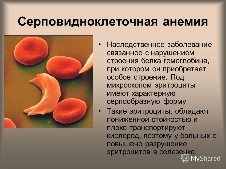 Серповидноклеточная анемия Наследственное заболевание связанное с нарушением строения белка гемоглобина, при котором он приобретает особое строение. Под микроскопом эритроциты имеют характерную серпообразную форму Такие эритроциты, обладают пониженно