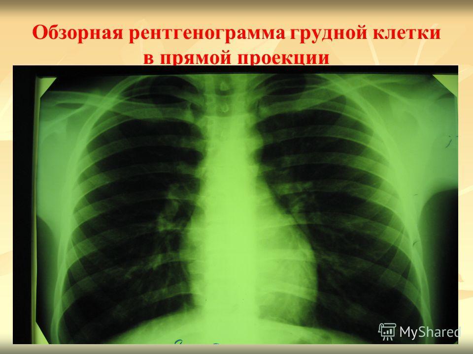 20 Обзорная рентгенограмма грудной клетки в прямой проекции