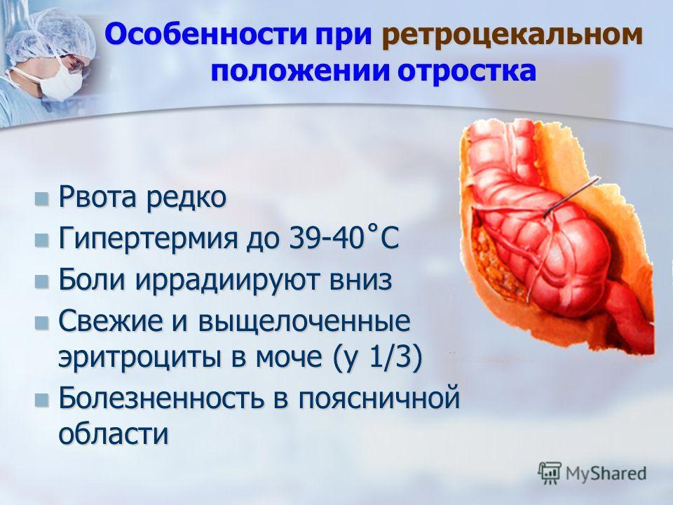 Рвота редко Рвота редко Гипертермия до 39-40˚С Гипертермия до 39-40˚С Боли иррадиируют вниз Боли иррадиируют вниз Свежие и выщелоченные эритроциты в моче (у 1/3) Свежие и выщелоченные эритроциты в моче (у 1/3) Болезненность в поясничной области Болез
