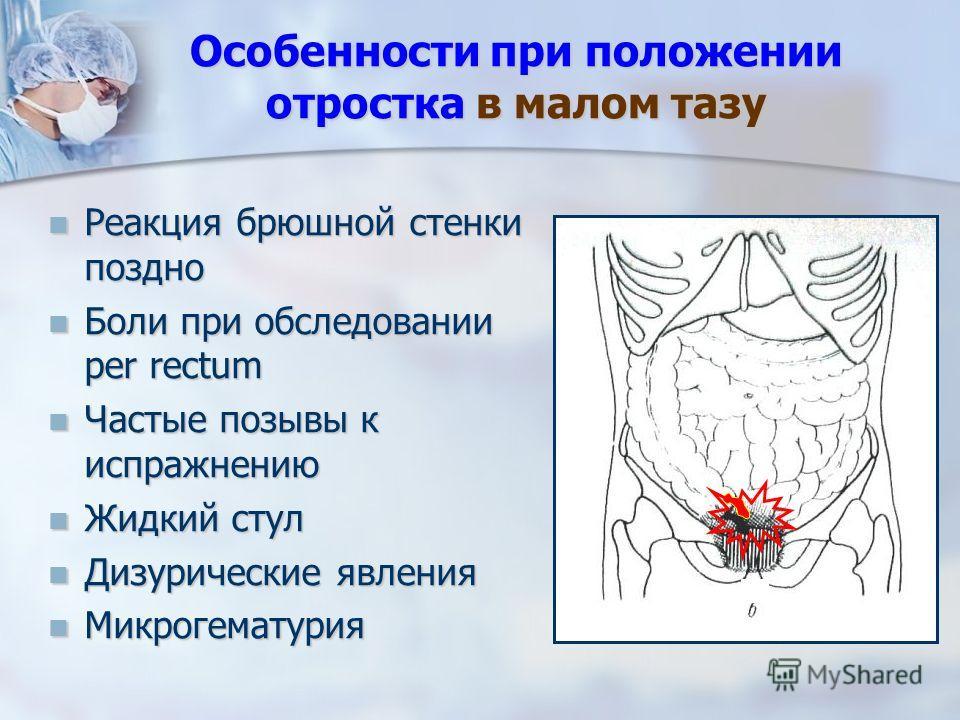 Особенности при положении отростка в малом тазу Реакция брюшной стенки поздно Боли при обследовании per rectum Частые позывы к испражнению Жидкий стул Дизурические явления Микрогематурия