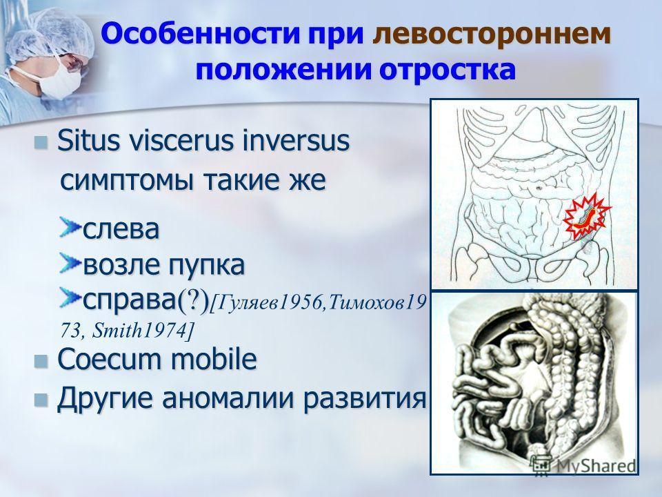 Особенности при левостороннем положении отростка Situs viscerus inversus Situs viscerus inversus симптомы такие же симптомы такие же Coecum mobile Coecum mobile Другие аномалии развития Другие аномалии развития слева возле пупка справа (?) справа (?)