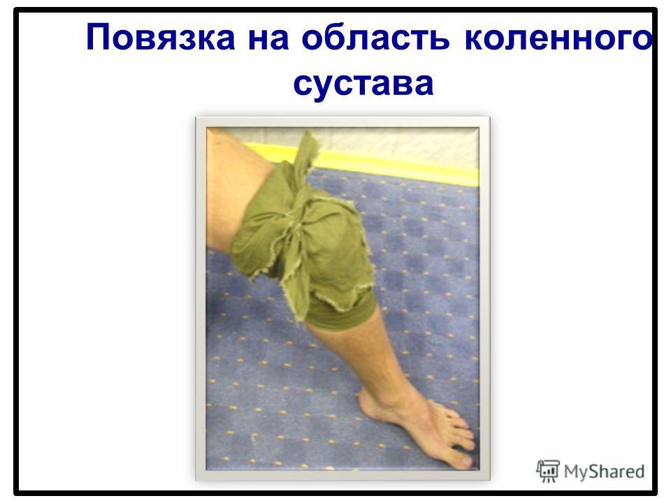 Повязка на область коленного сустава