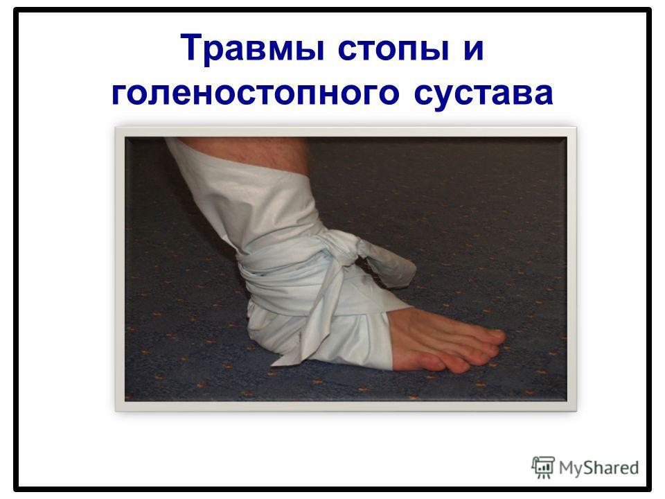 Травмы стопы и голеностопного сустава