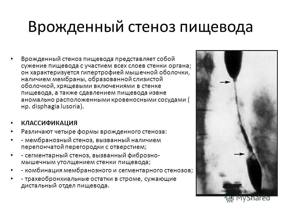 Врожденный стеноз пищевода Врожденный стеноз пищевода представляет собой сужение пищевода с участием всех слоев стенки органа; он характеризуется гипертрофией мышечной оболочки, наличием мембраны, образованной слизистой оболочкой, хрящевыми включения