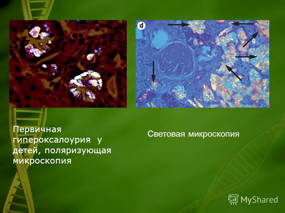 Первичная гипероксалоурия у детей, поляризующая микроскопия Световая микроскопия