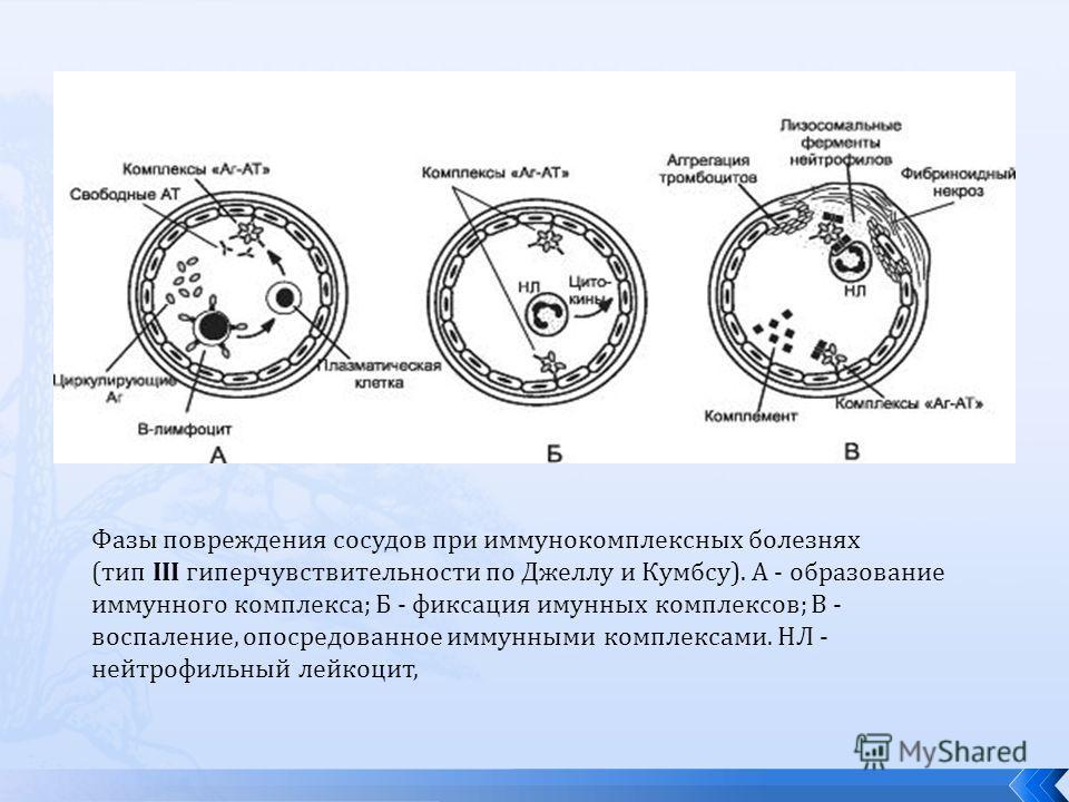 Фазы повреждения сосудов при иммунокомплексных болезнях (тип III гиперчувствительности по Джеллу и Кумбсу). А - образование иммунного комплекса; Б - фиксация иммунных комплексов; В - воспаление, опосредованное иммунными комплексами. НЛ - нейтрофильны