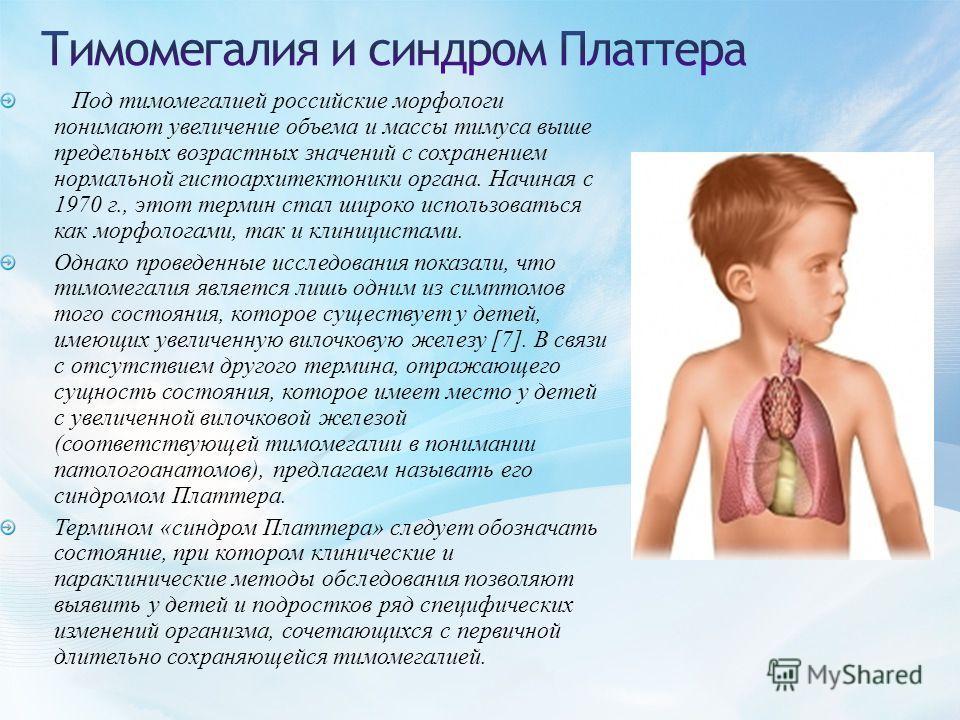 Под тимомегалией российские морфологи понимают увеличение объема и массы тимуса выше предельных возрастных значений с сохранением нормальной гистоархитектоники органа. Начиная с 1970 г., этот термин стал широко использоваться как морфологами, так и к
