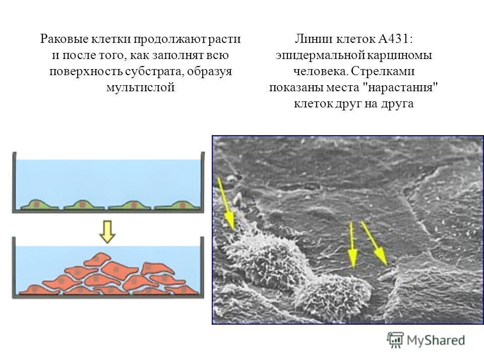 Раковые клетки продолжают расти и после того, как заполнят всю поверхность субстрата, образуя мультислой Линии клеток А431: эпидермальной карциномы человека. Стрелками показаны места нарастания клеток друг на друга
