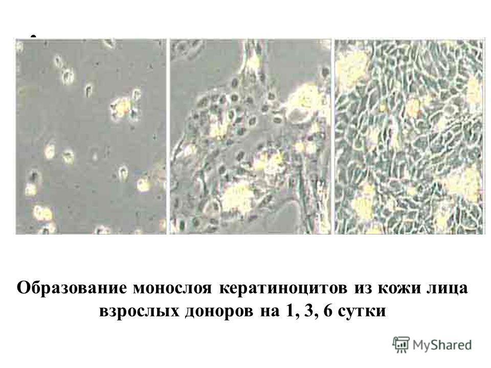 Образование монослоя кератиноцитов из кожи лица взрослых доноров на 1, 3, 6 сутки