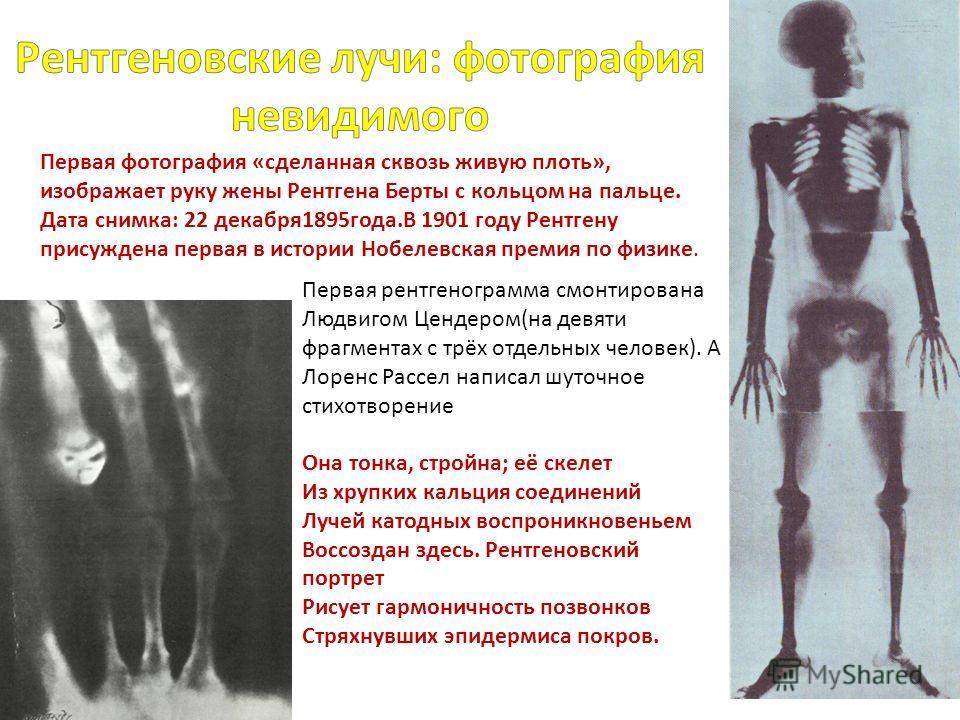 Первая рентгенограмма смонтирована Людвигом Цендером(на девяти фрагментах с трёх отдельных человек). А Лоренс Рассел написал шуточное стихотворение Она тонка, стройна; её скелет Из хрупких кальция соединений Лучей катодных воспроникновеньем Воссоздан