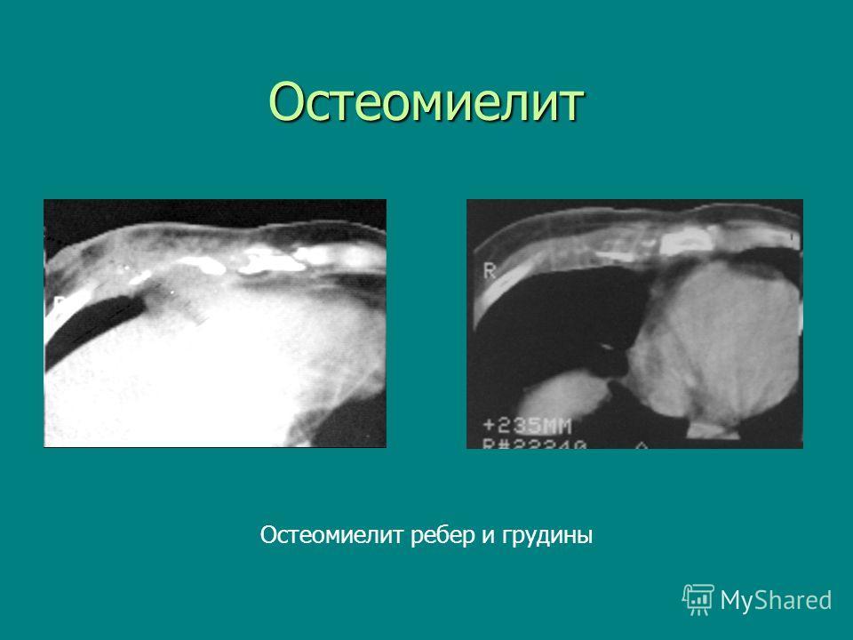 Остеомиелит Остеомиелит ребер и грудины