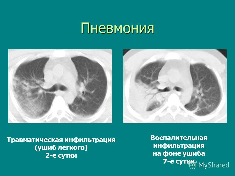 Пневмония Травматическая инфильтрация (ушиб легкого) 2-е сутки Воспалительная инфильтрация на фоне ушиба 7-е сутки