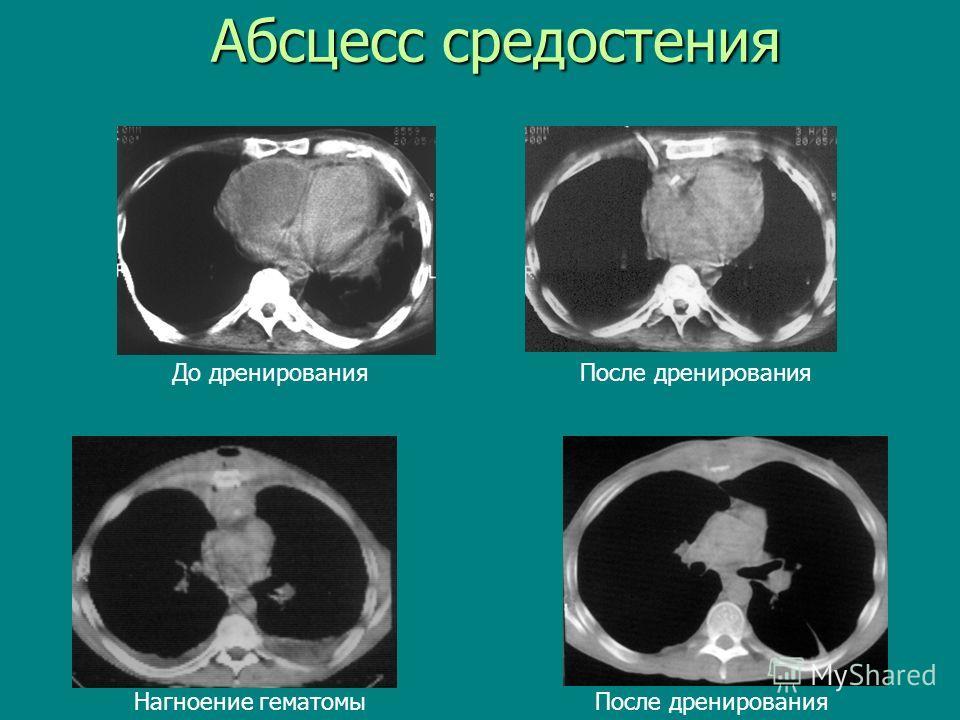 Абсцесс средостения Нагноение гематомы После дренирования До дренирования После дренирования