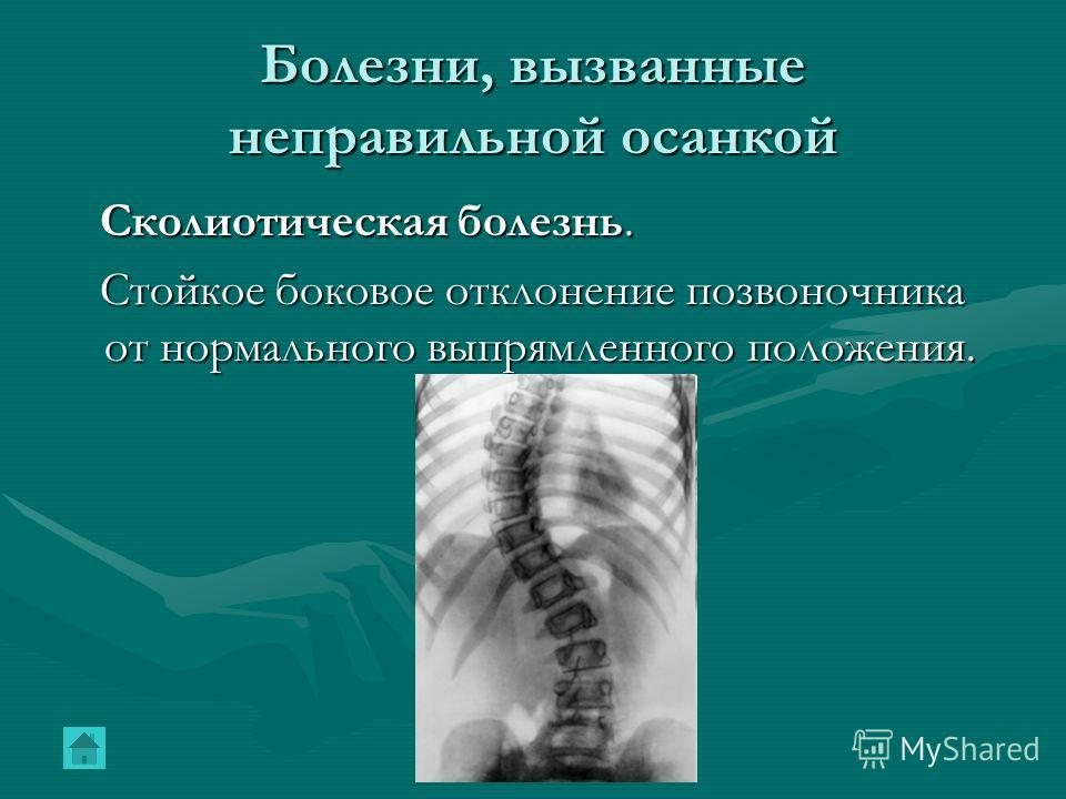 Болезни, вызванные неправильной осанкой Сколиотическая болезнь. Сколиотическая болезнь. Стойкое боковое отклонение позвоночника от нормального выпрямленного положения. Стойкое боковое отклонение позвоночника от нормального выпрямленного положения.