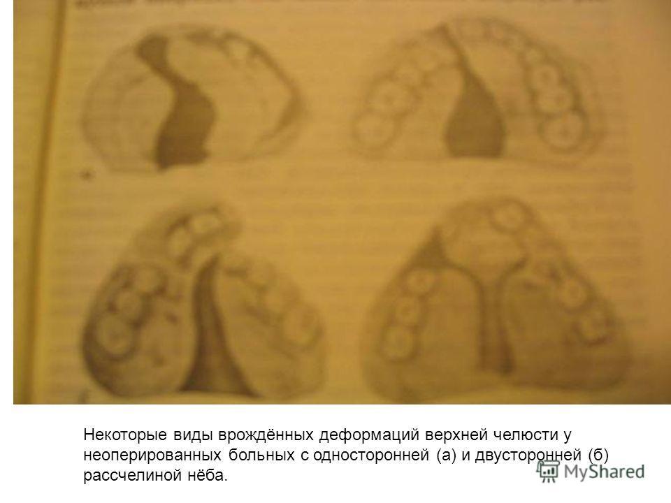 Некоторые виды врождённых деформаций верхней челюсти у не оперированных больных с односторонней (а) и двусторонней (б) рассчелиной нёба.