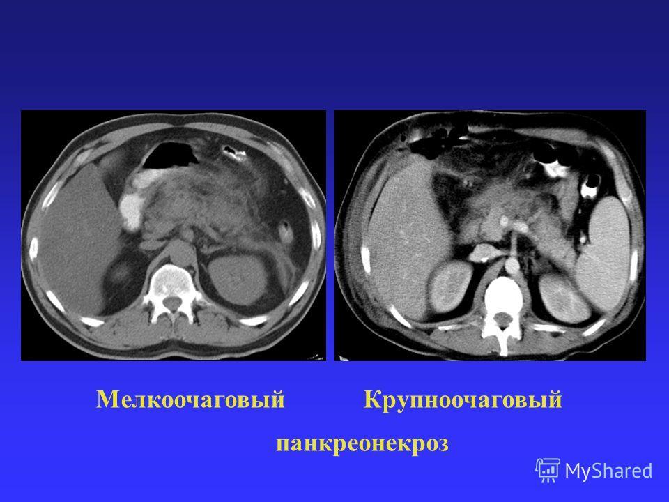 Мелкоочаговый Крупноочаговый панкреонекроз
