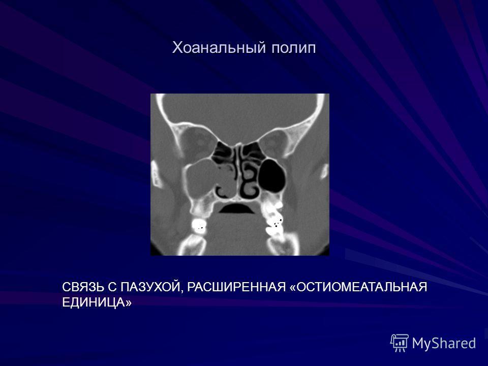 Хоанальный полип СВЯЗЬ С ПАЗУХОЙ, РАСШИРЕННАЯ «ОСТИОМЕАТАЛЬНАЯ ЕДИНИЦА»