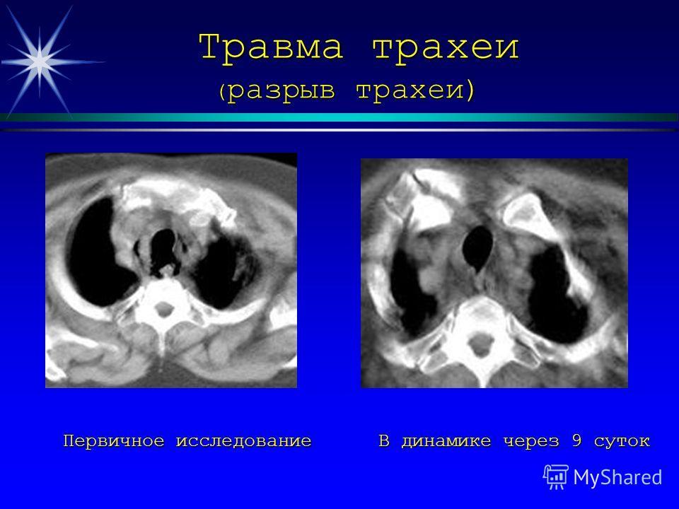 Травма трахеи ( разрыв трахеи) Первичное исследование В динамике через 9 суток