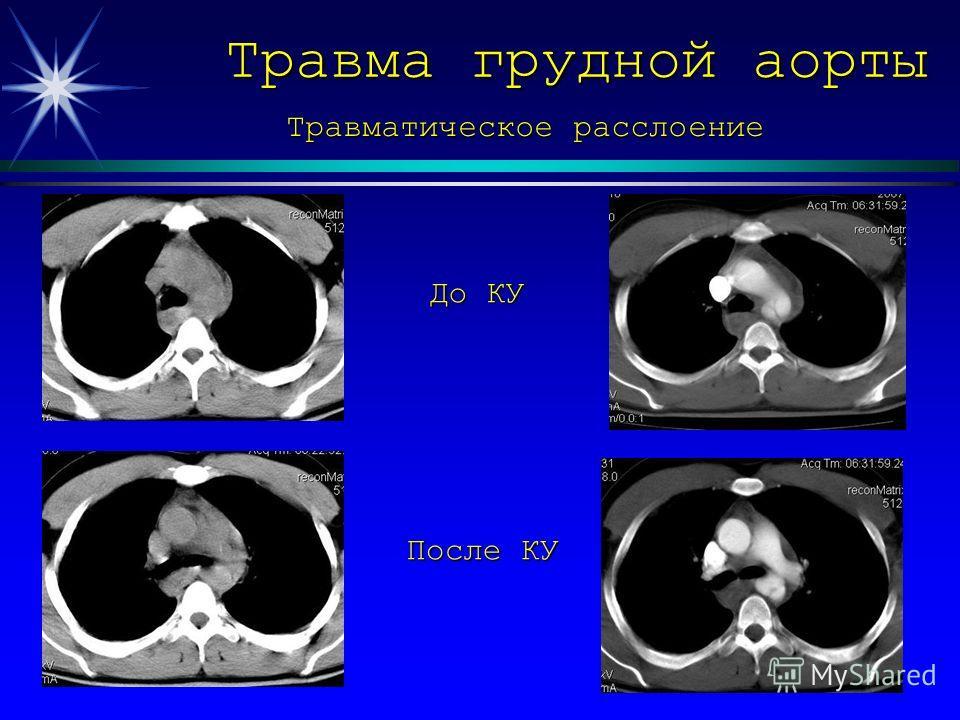 Травма грудной аорты До КУ После КУ Травматическое расслоение