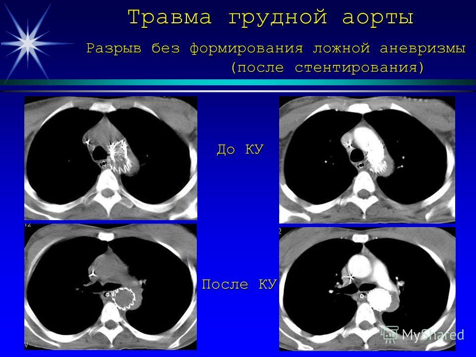 Травма грудной аорты Разрыв без формирования ложной аневризмы (после стентирования) (после стентирования) До КУ После КУ