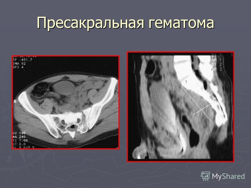 Пресакральная гематома