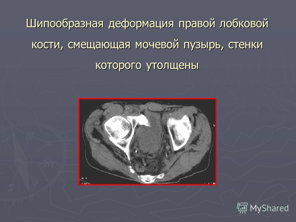 Шипообразная деформация правой лобковой кости, смещающая мочевой пузырь, стенки которого утолщены