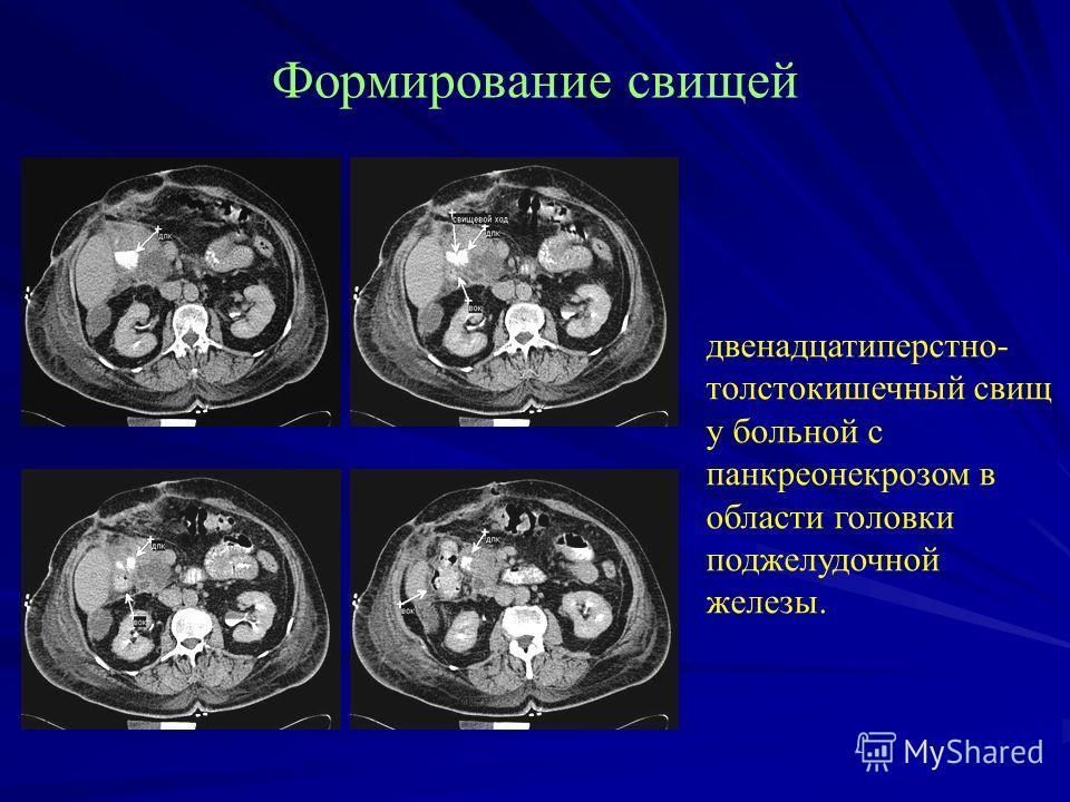 Формирование свищей двенадцатиперстно- толстокишечный свищ у больной с панкреонекрозом в области головки поджелудочной железы.