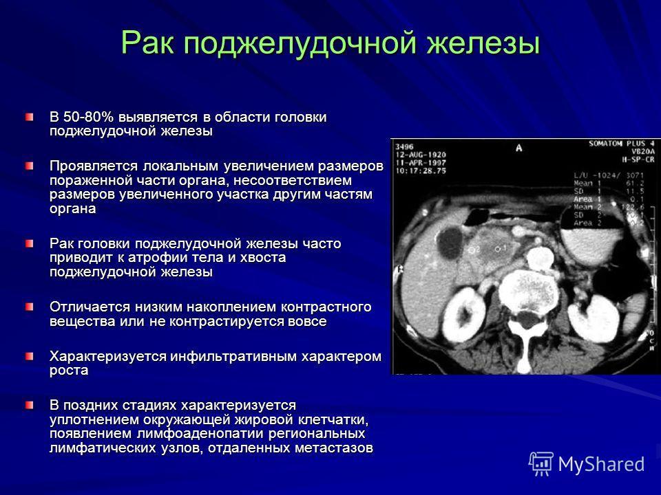 Рак поджелудочной железы В 50-80% выявляется в области головки поджелудочной железы Проявляется локальным увеличением размеров пораженной части органа, несоответствием размеров увеличенного участка другим частям органа Рак головки поджелудочной желез