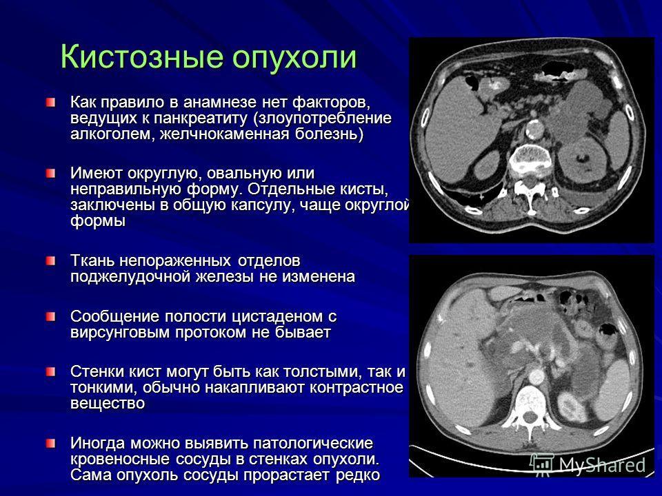 Кистозные опухоли Как правило в анамнезе нет факторов, ведущих к панкреатиту (злоупотребление алкоголем, желчнокаменная болезнь) Имеют округлую, овальную или неправильную форму. Отдельные кисты, заключены в общую капсулу, чаще округлой формы Ткань не