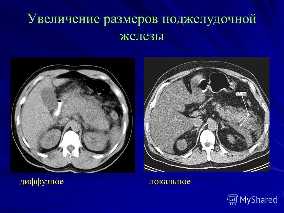 Увеличение размеров поджелудочной железы диффузное локальное