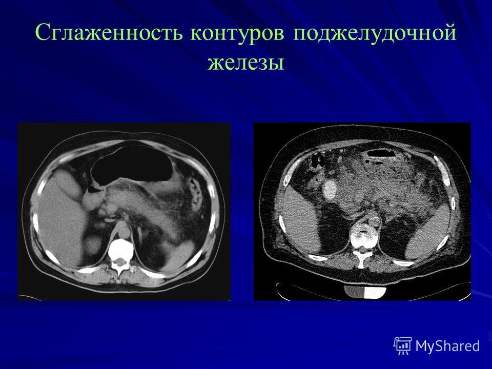 Сглаженность контуров поджелудочной железы
