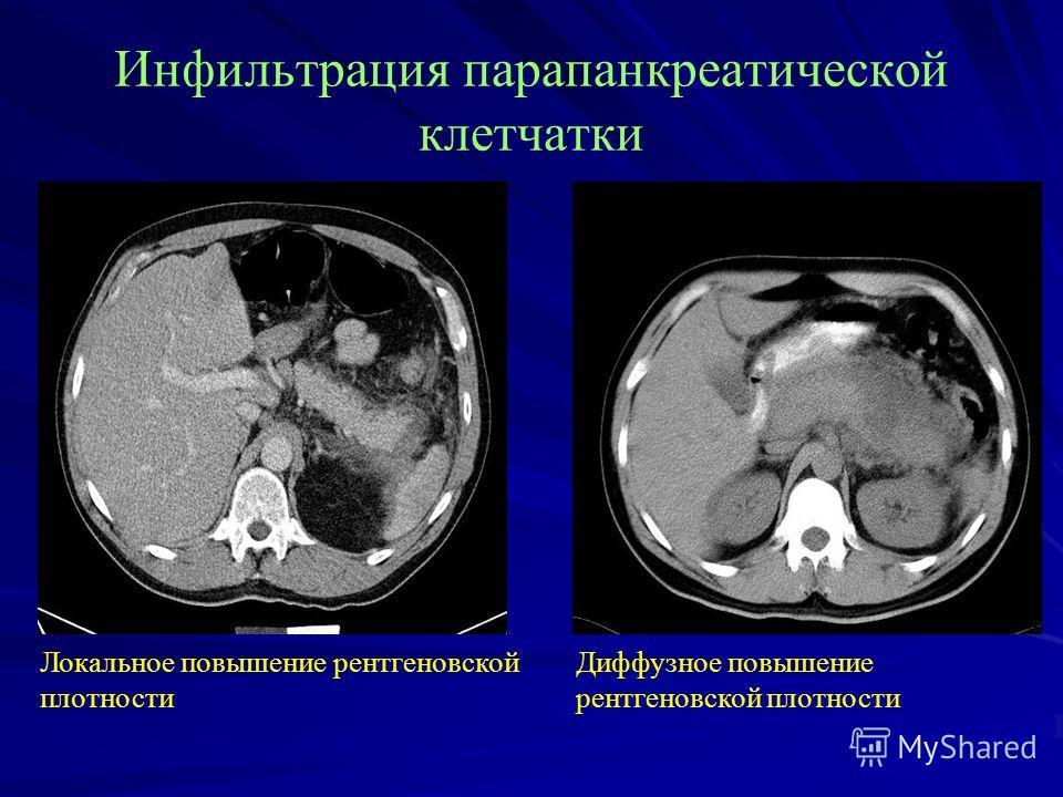 Инфильтрация пара панкреатической клетчатки Локальное повышение рентгеновской плотности Диффузное повышение рентгеновской плотности