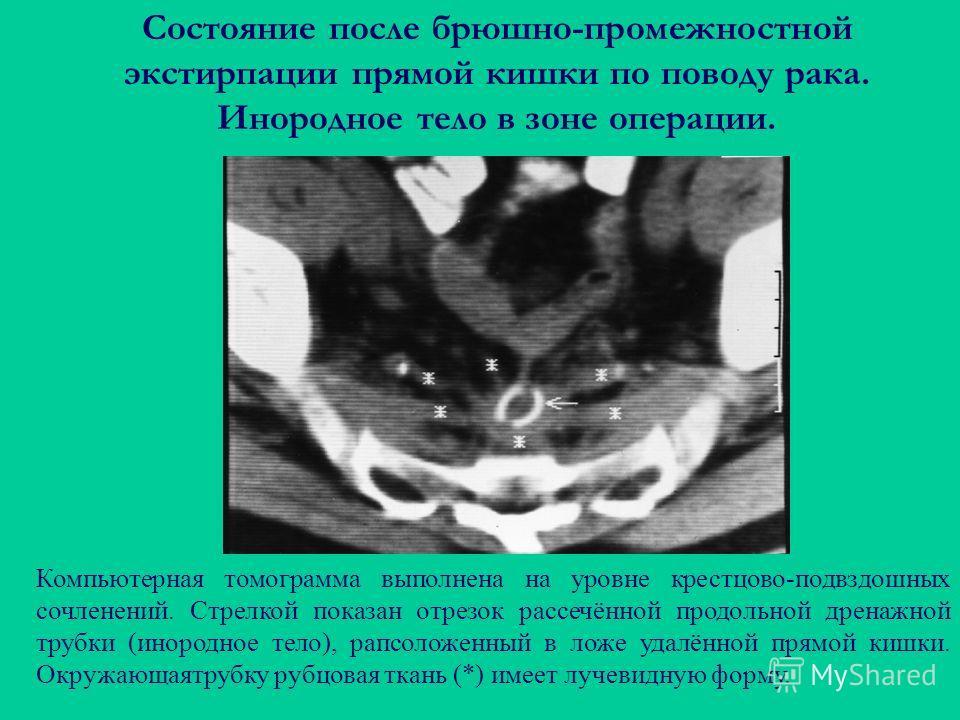Состояние после брюшно-промежностной экстирпации прямой кишки по поводу рака. Инородное тело в зоне операции. Компьютерная томограмма выполнена на уровне крестцово-подвздошных сочленений. Стрелкой показан отрезок рассечённой продольной дренажной труб