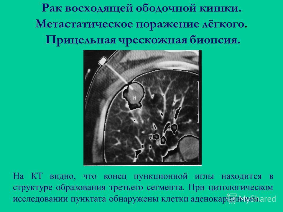 Рак восходящей ободочной кишки. Метастатическое поражение лёгкого. Прицельная чрескожная биопсия. На КТ видно, что конец пункционной иглы находится в структуре образования третьего сегмента. При цитологическом исследовании пунктата обнаружены клетки