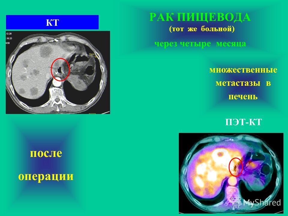 РАК ПИЩЕВОДА (тот же больной) через четыре месяца после операции ПЭТ-КТ КТ множественные метастазы в печень