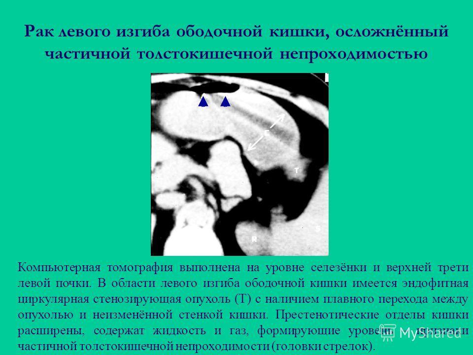 Рак левого изгиба ободочной кишки, осложнённый частичной толстокишечной непроходимостью Компьютерная томография выполнена на уровне селезёнки и верхней трети левой почки. В области левого изгиба ободочной кишки имеется эндофитная циркулярная стенозир