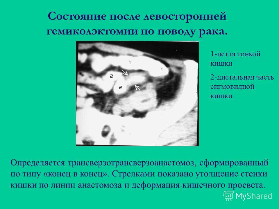Состояние после левосторонней гемиколэктомии по поводу рака. Определяется трансверзотрансверзоанастомоз, сформированный по типу «конец в конец». Стрелками показано утолщение стенки кишки по линии анастомоза и деформация кишечного просвета. 1-петля то