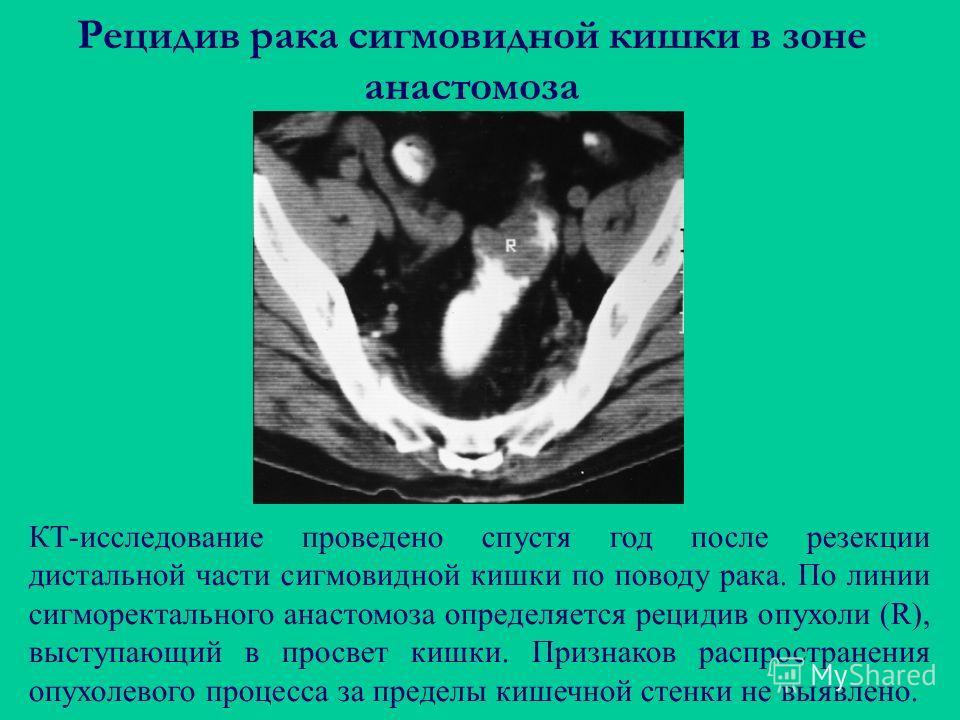 Рецидив рака сигмовидной кишки в зоне анастомоза КТ-исследование проведено спустя год после резекции дистальной части сигмовидной кишки по поводу рака. По линии сигморектального анастомоза определяется рецидив опухоли (R), выступающий в просвет кишки