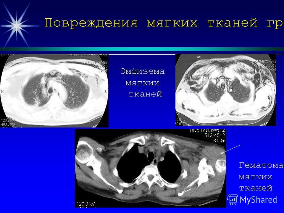 Повреждения мягких тканей груди Эмфиземамягкихтканей Гематомамягкихтканей