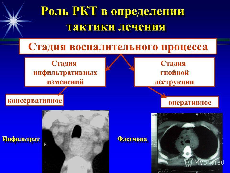 РКТ-признаки изменения органов средостения и костного каркаса при злокачественных опухолях