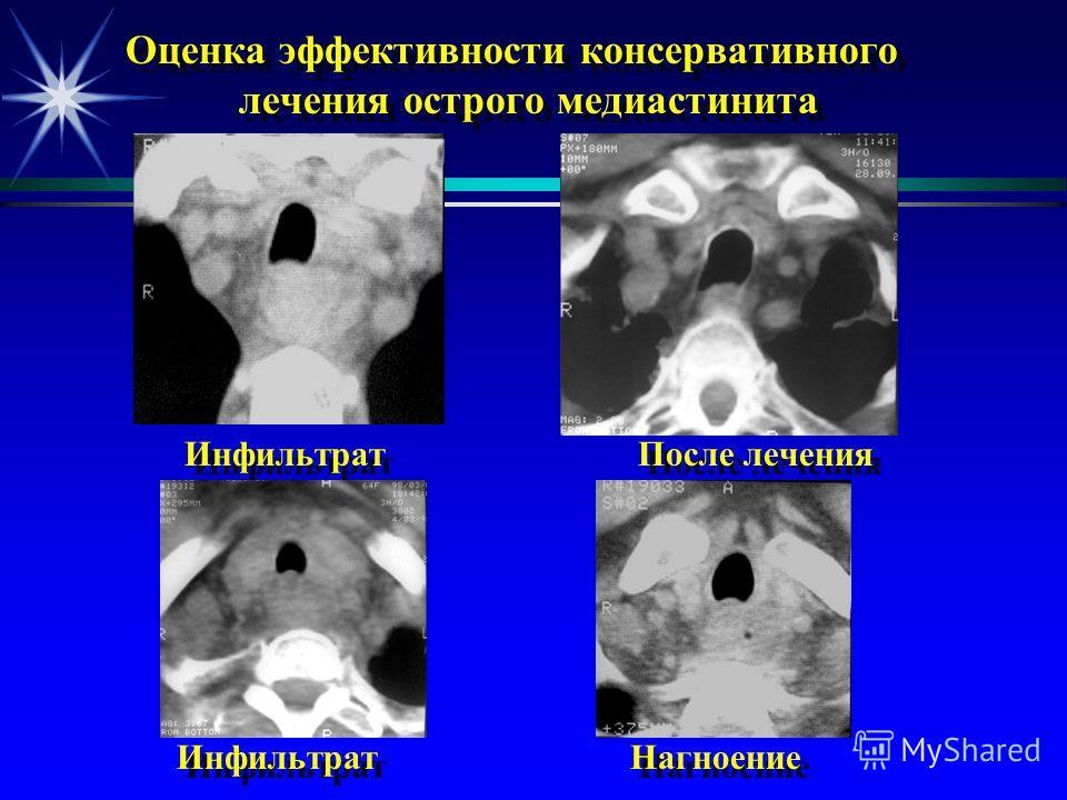 Точная локализация и распространенность процесса Верхние отделы переднего и заднего средостения Нижние отделы переднего средостения Нижние отделы заднего средостения Чресшейная медиастино- томия Стернотомия Чрескожное дренирование под КТ-наведением Ч