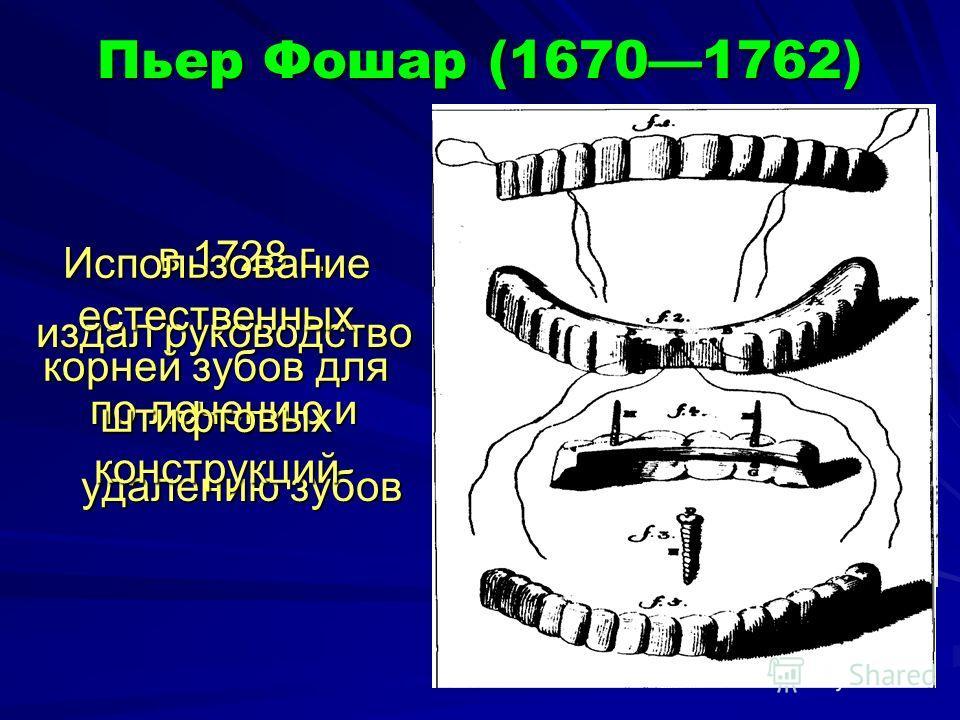 Пьер Фошар (16701762) в 1728 г. издал руководство по лечению и удалению зубов Использование естественных корней зубов для штифтовых конструкций
