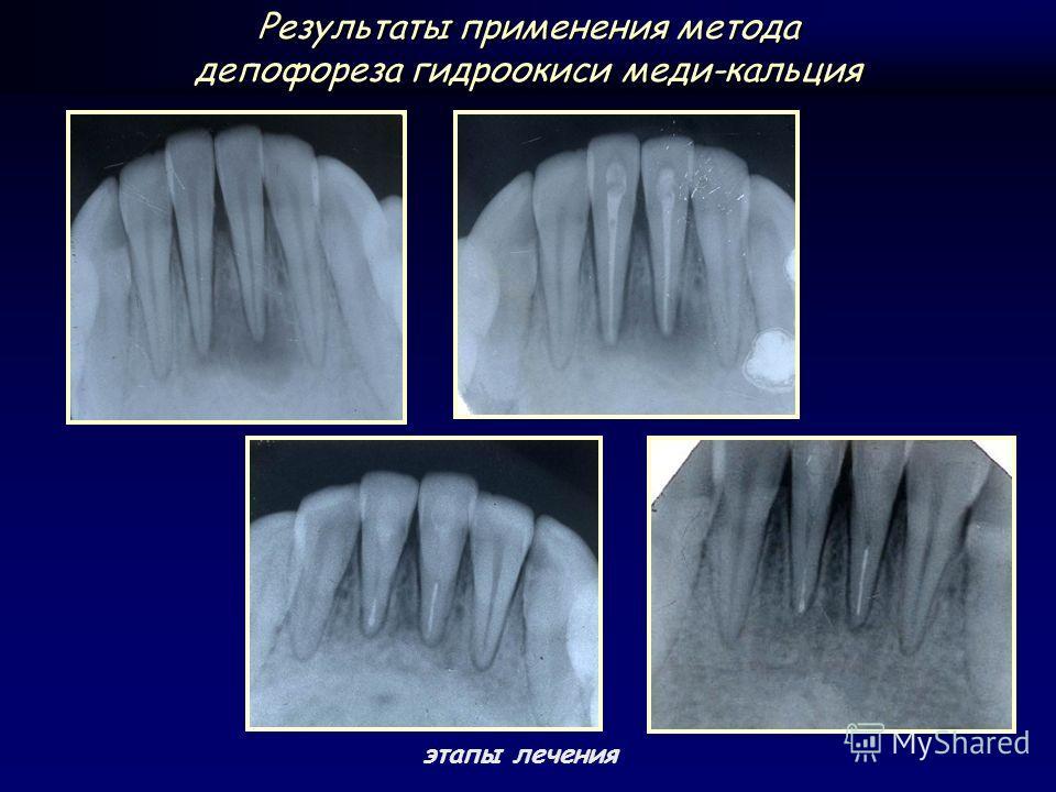 этапы лечения Результаты применения метода депофореза гидроокиси меди-кальция