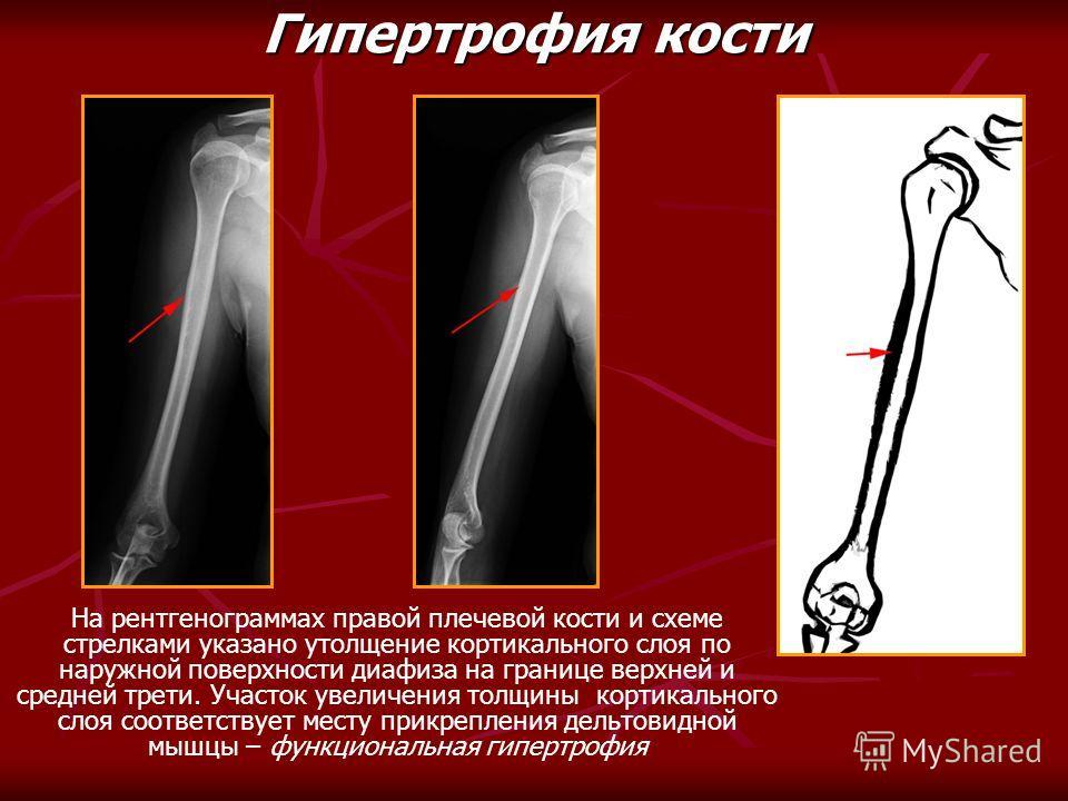 На рентгенограммах правой плечевой кости и схеме стрелками указано утолщение кортикального слоя по наружной поверхности диафиза на границе верхней и средней трети. Участок увеличения толщины кортикального слоя соответствует месту прикрепления дельтов