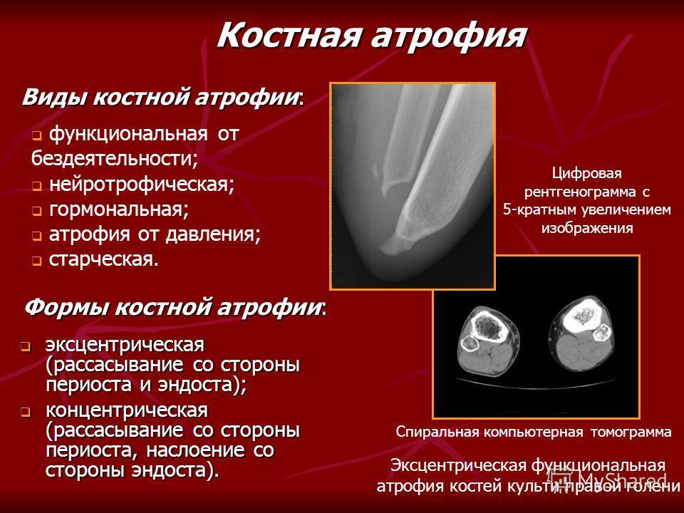 Виды костной атрофии: Костная атрофия функциональная от бездеятельности; нейротрофическая; гормональная; атрофия от давления; старческая. эксцентрическая (рассасывание со стороны периоста и эндоста); эксцентрическая (рассасывание со стороны периоста