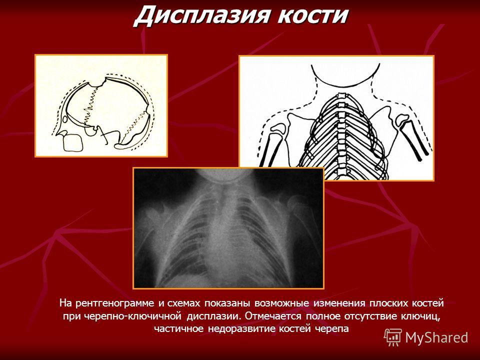 На рентгенограмме и схемах показаны возможные изменения плоских костей при черепно-ключичной дисплазии. Отмечается полное отсутствие ключиц, частичное недоразвитие костей черепа Дисплазия кости